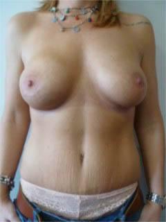 abdominoplastie buikwandcorrectie