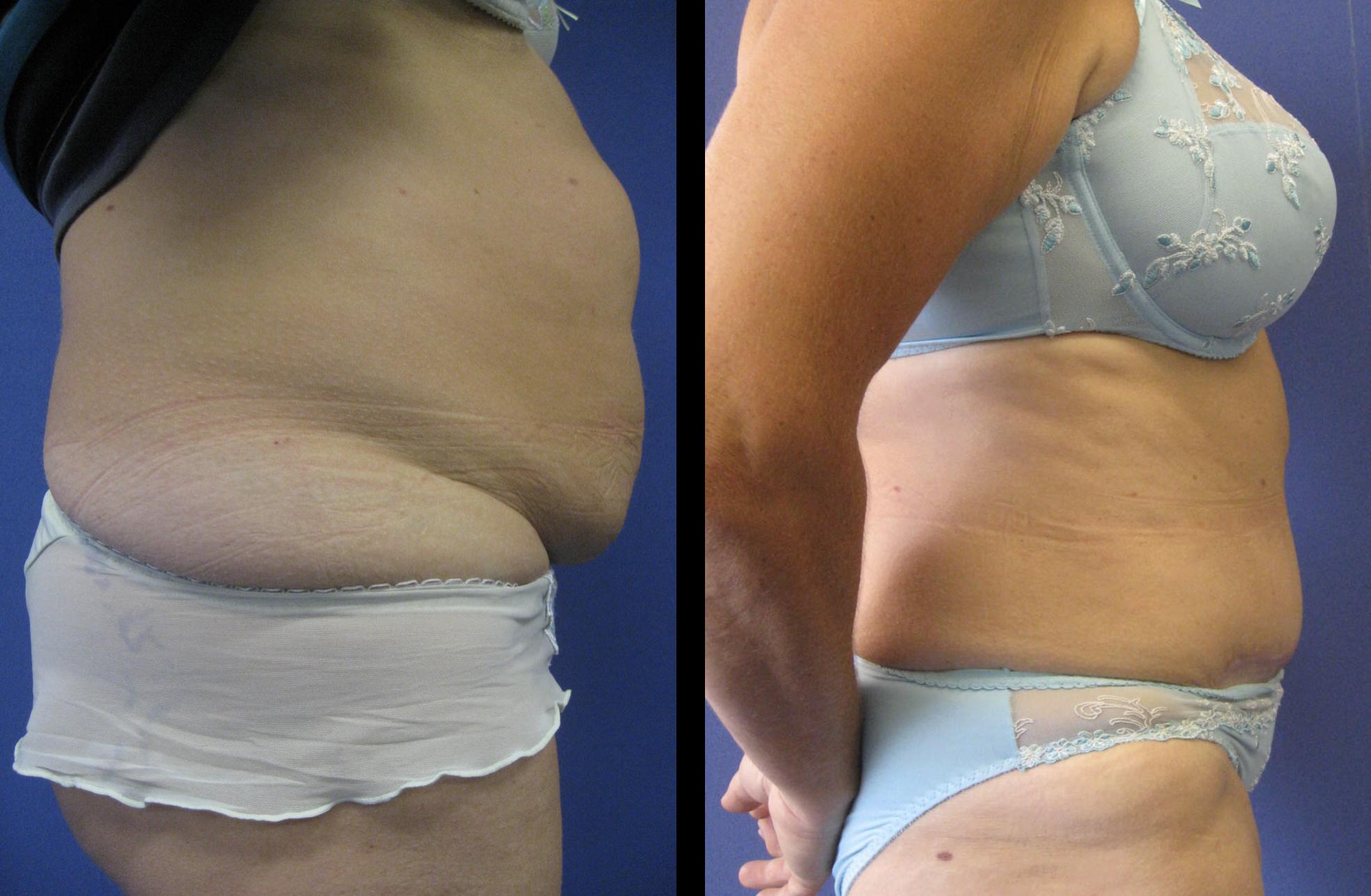 abdominoplastie borstlifting