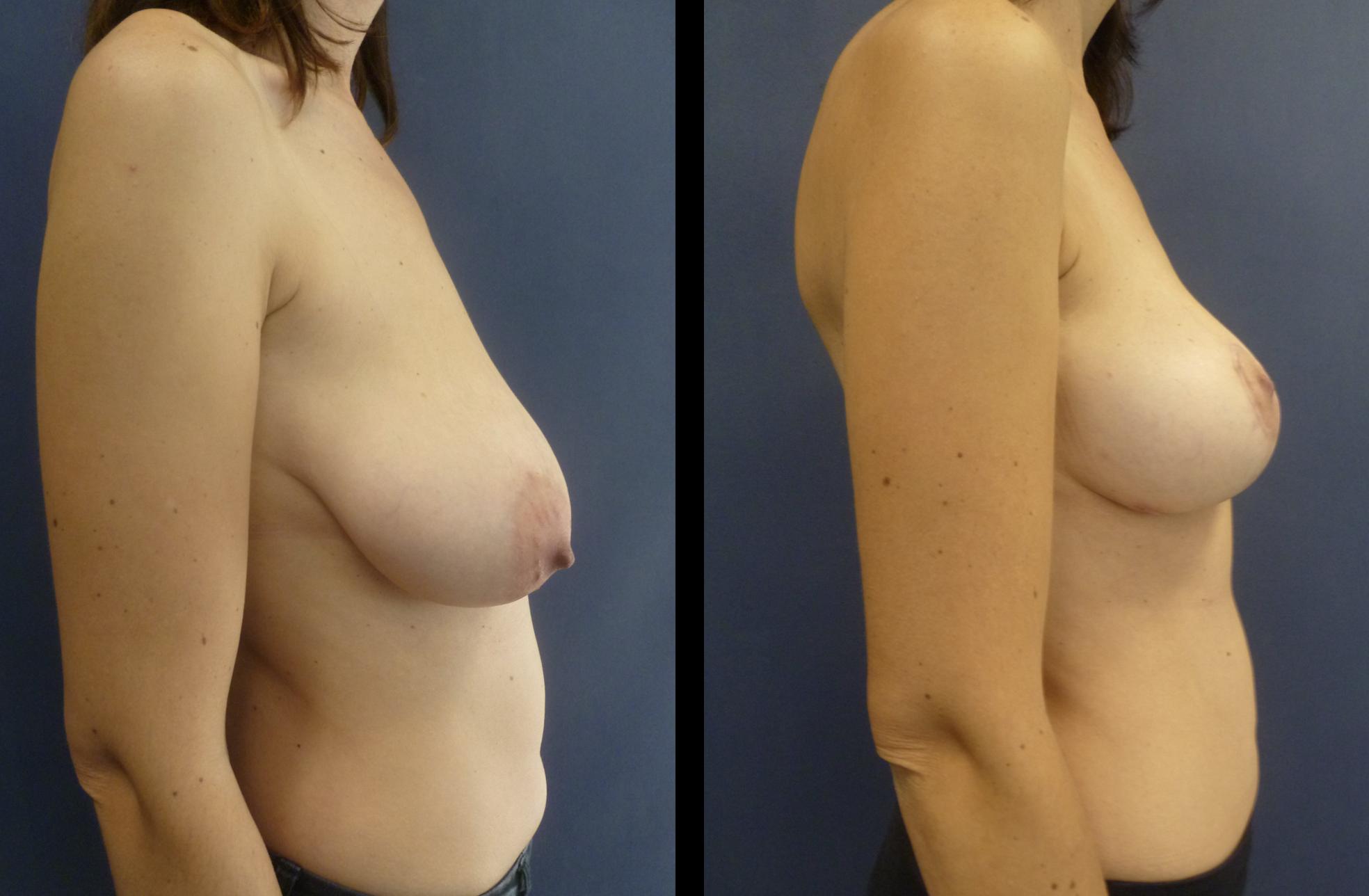 borstlifting voor en na