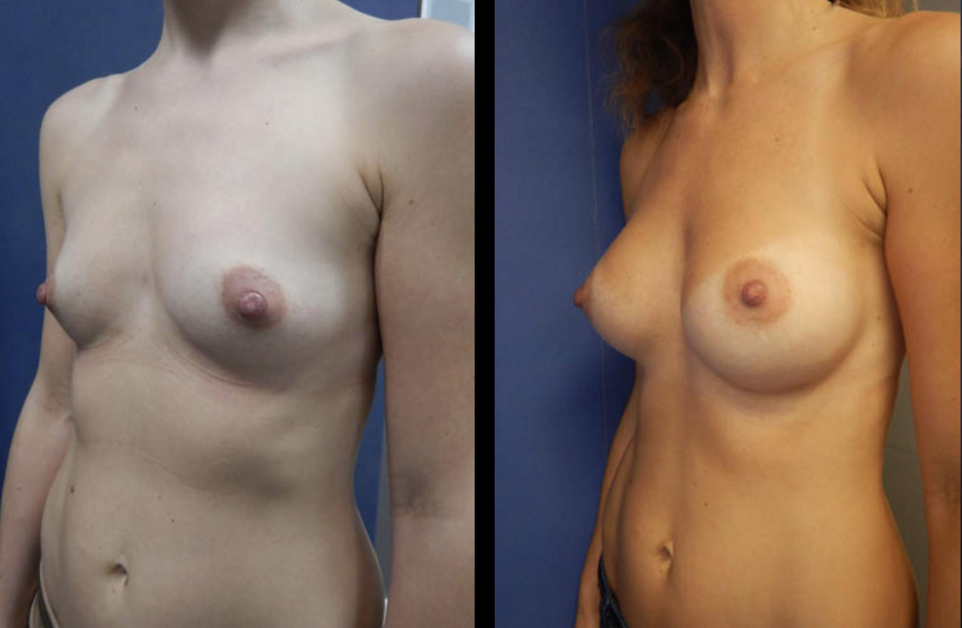 borstvergroting foto's voor en na voorbeelden