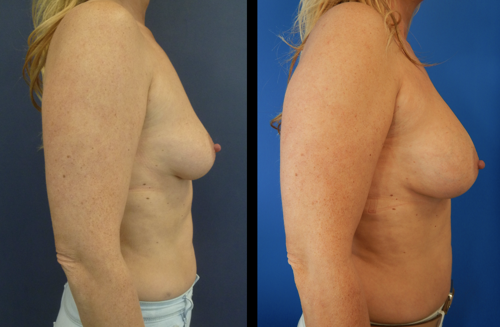 borstvergroting foto's voor en na