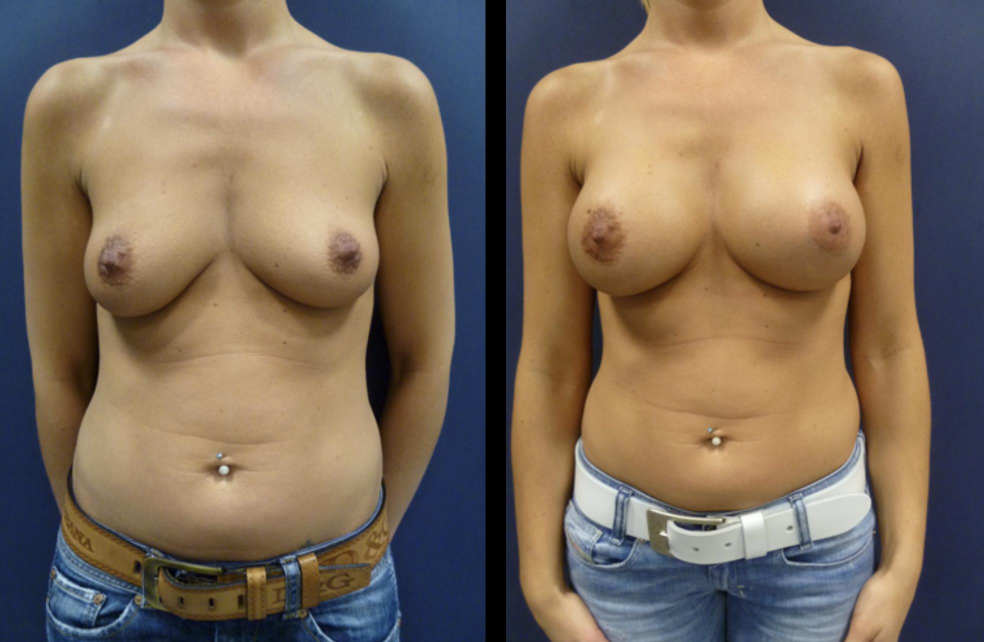 borstaugmentatie voor en na