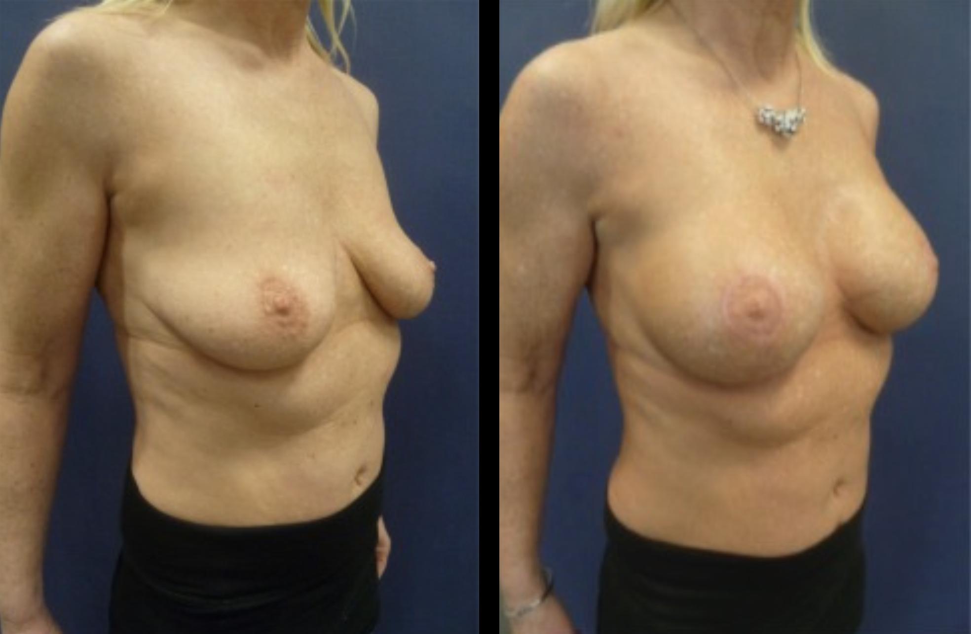 borstvergroting met lifting voor en na