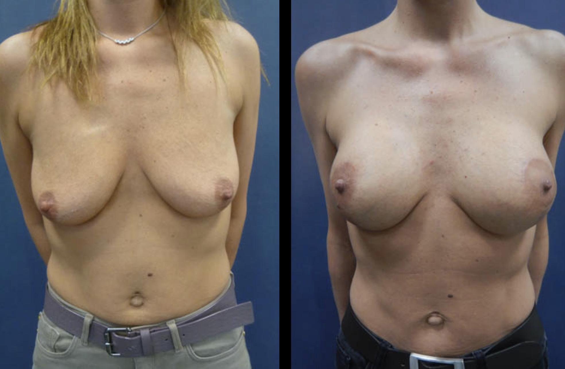 borstlifting met borstimplantaten