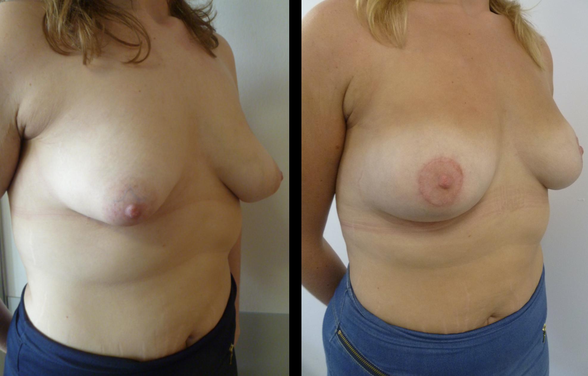 borstvergroting voor en na