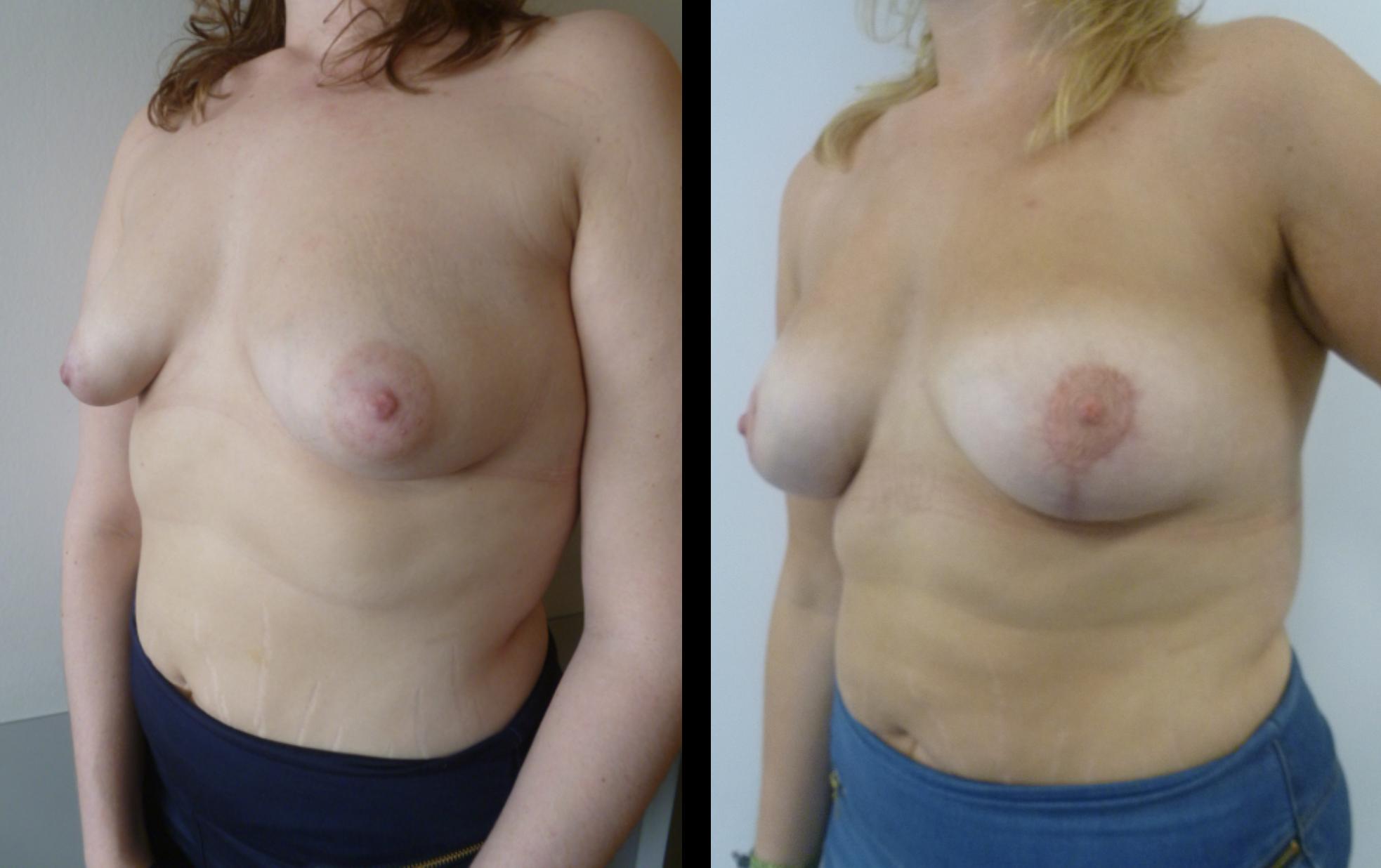 borstvergroting borstlifting tubereuze borst