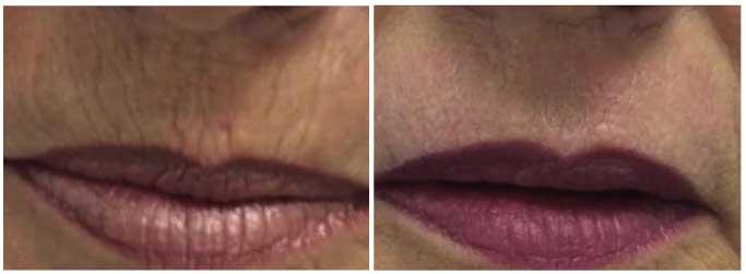 HLH PLEXR Lippen