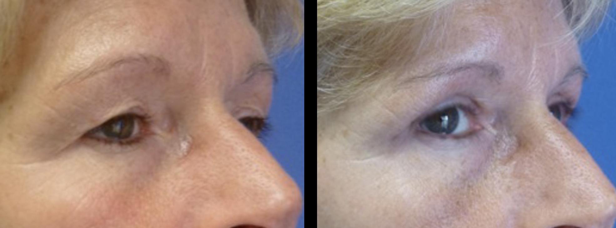 bovenste ooglidcorrectie voor en na