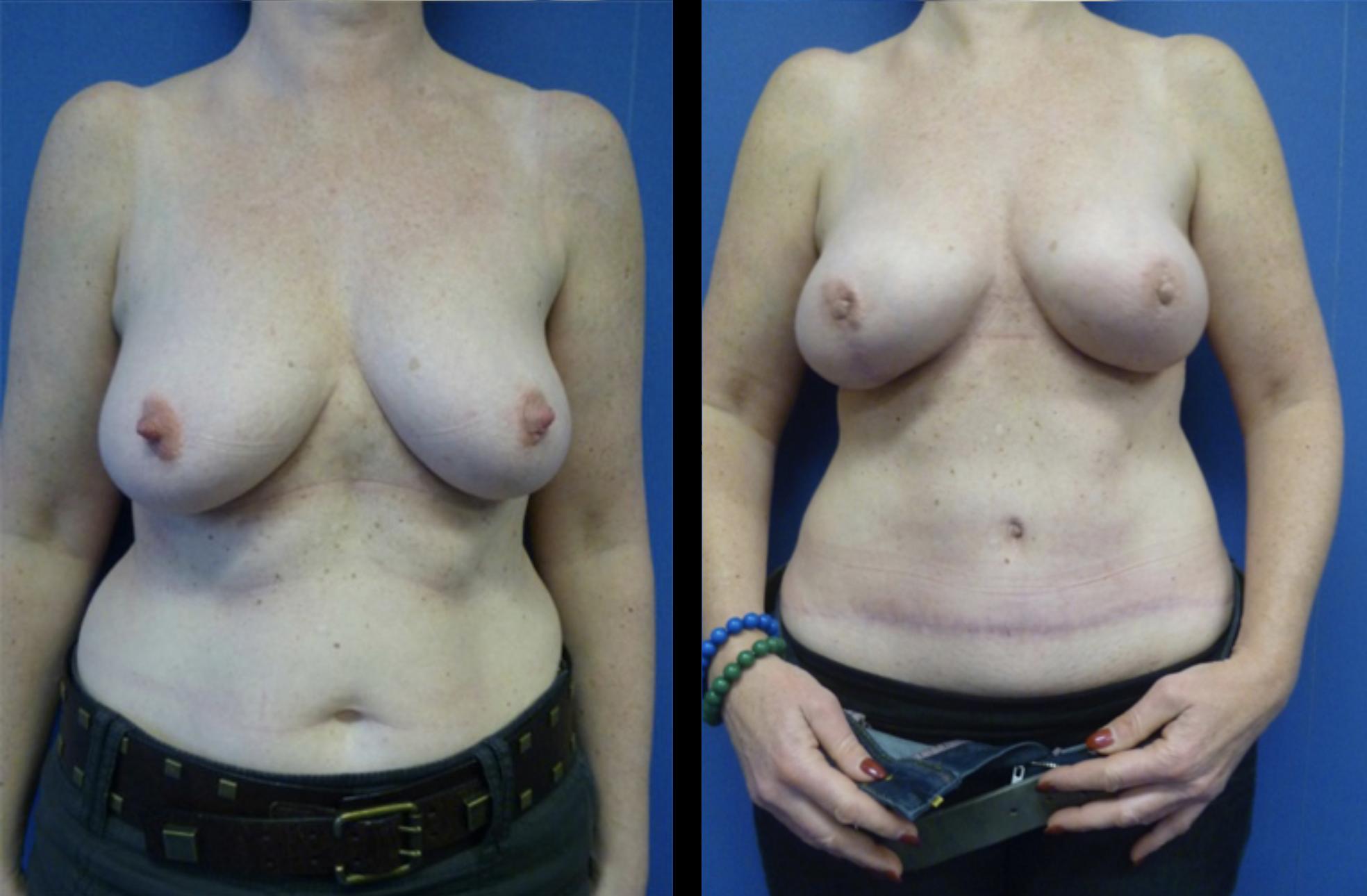 borstreconstructie diepflap