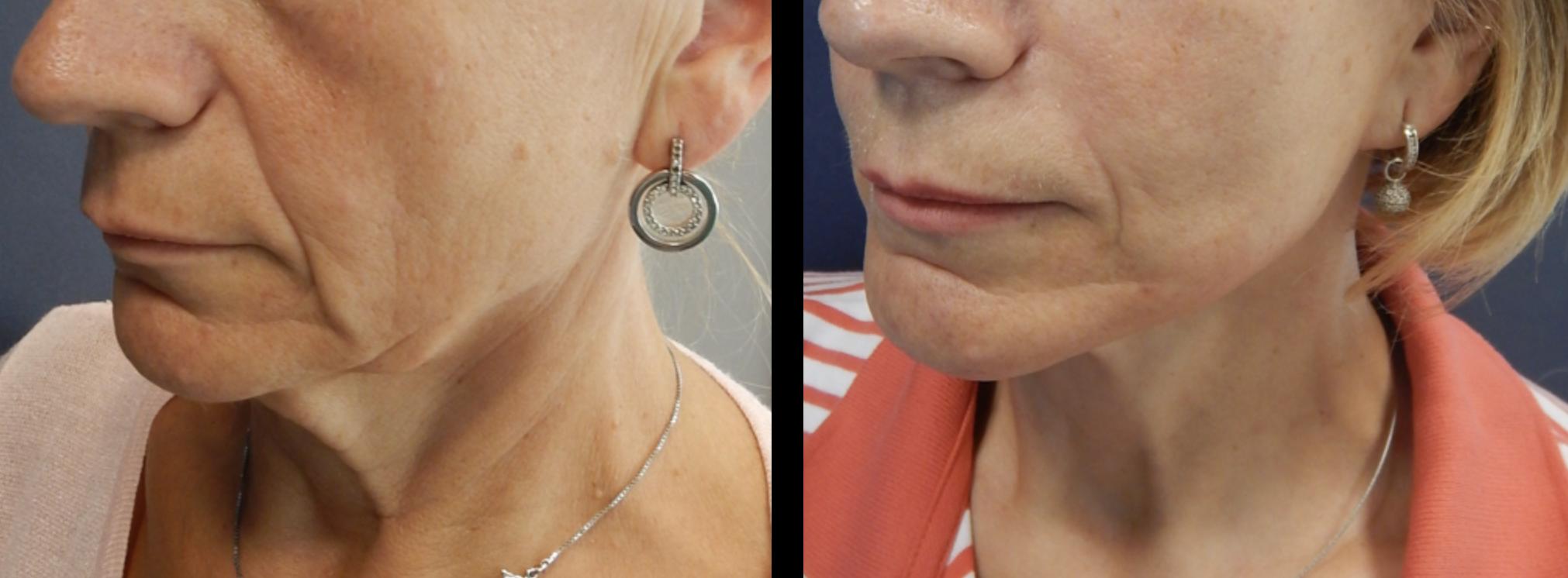 Chirurg Die De Injecties Van De Lippenschoonheid Geven Aan