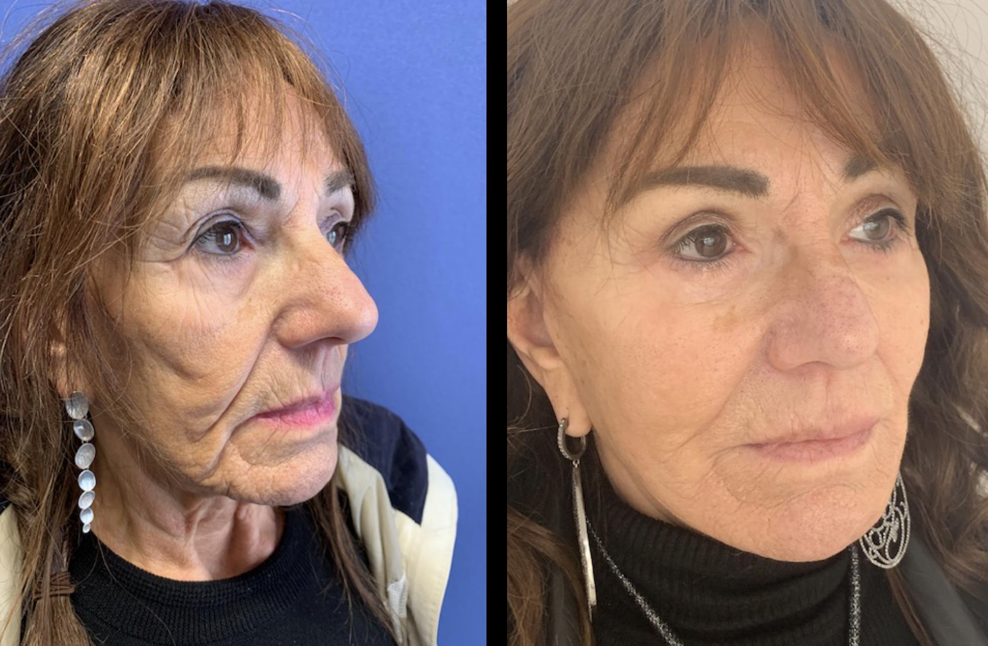 Wat is Bruxisme en hoe Botox je nachtrust kan verbeteren