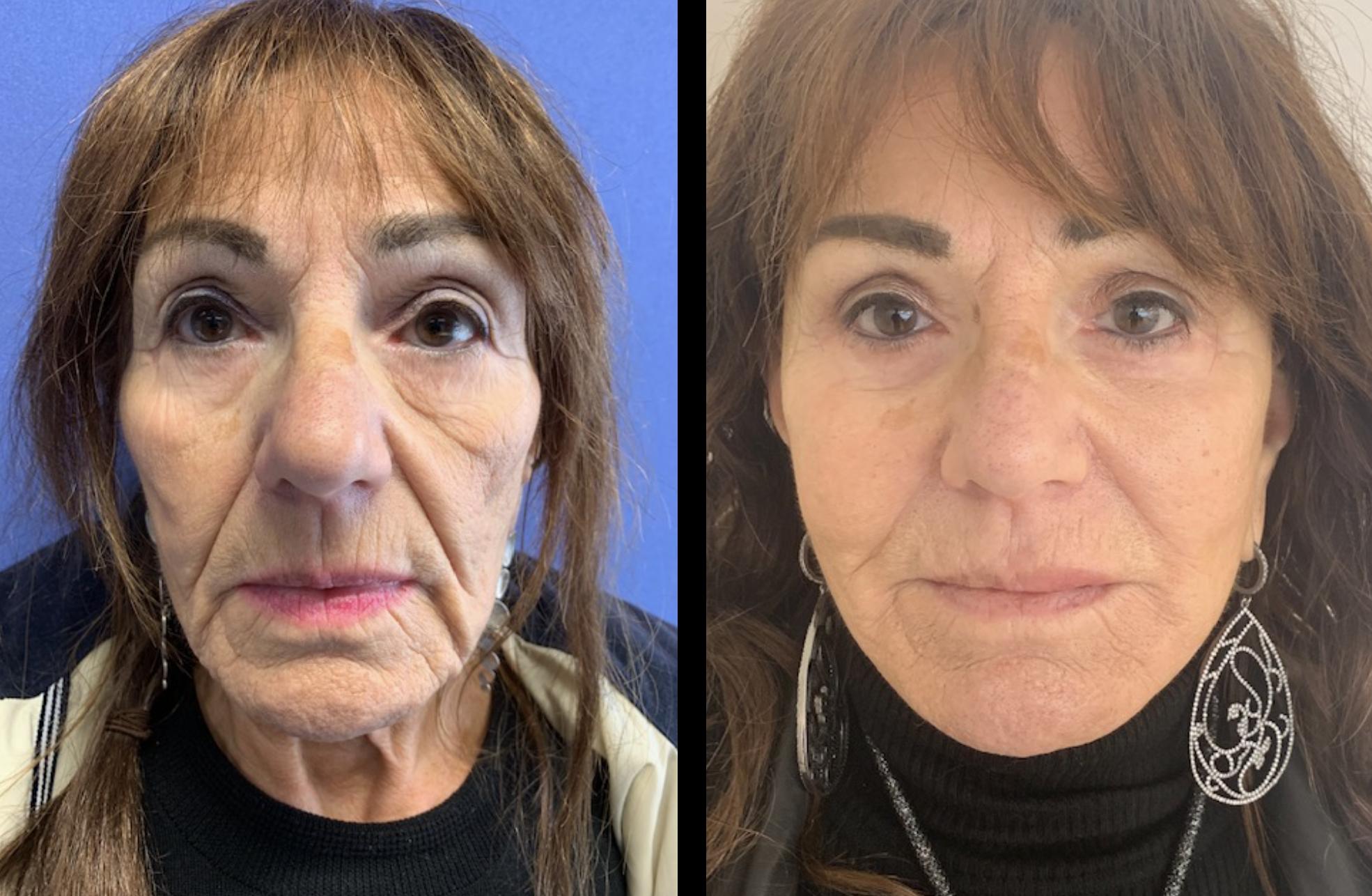 Botox tegen overmatig zweten (in de oksels) - Kosten