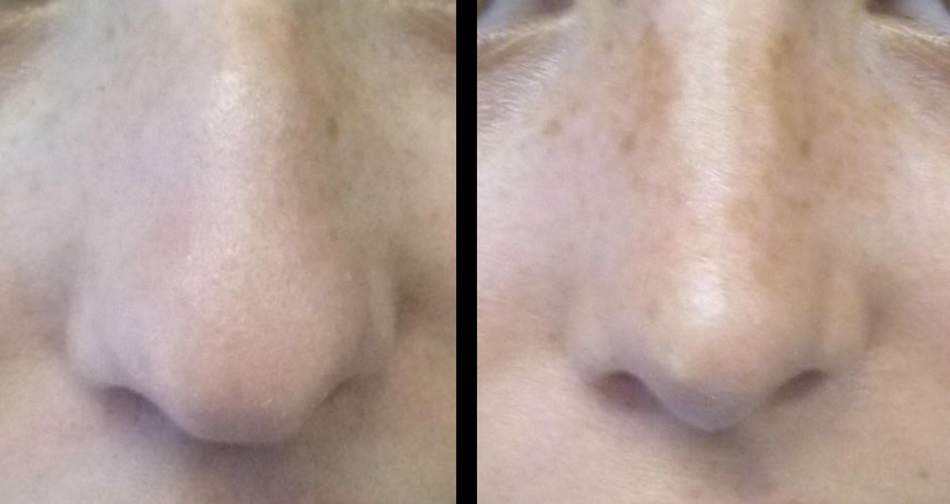 rhinoplastie voor en na
