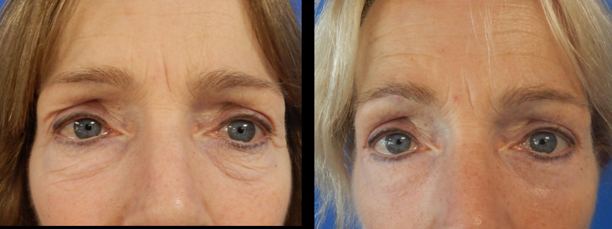 onderste ooglidcorrectie voor en na
