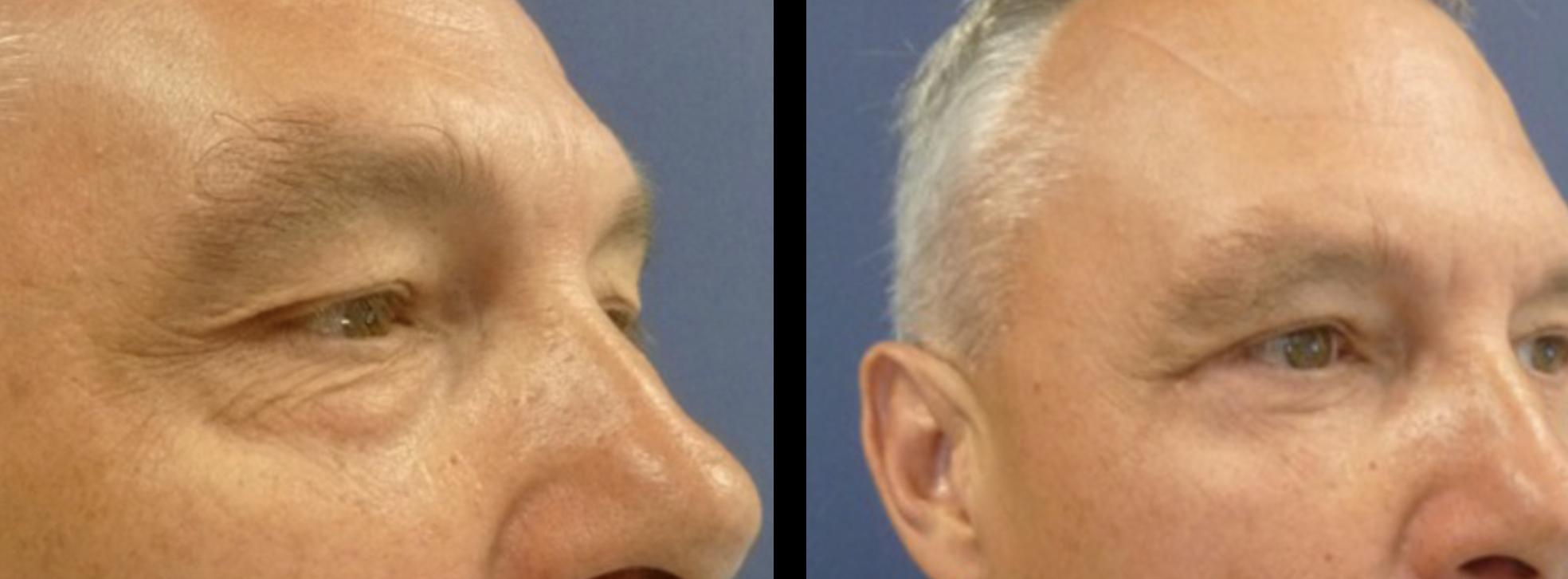 onderste ooglid correctie voor en na